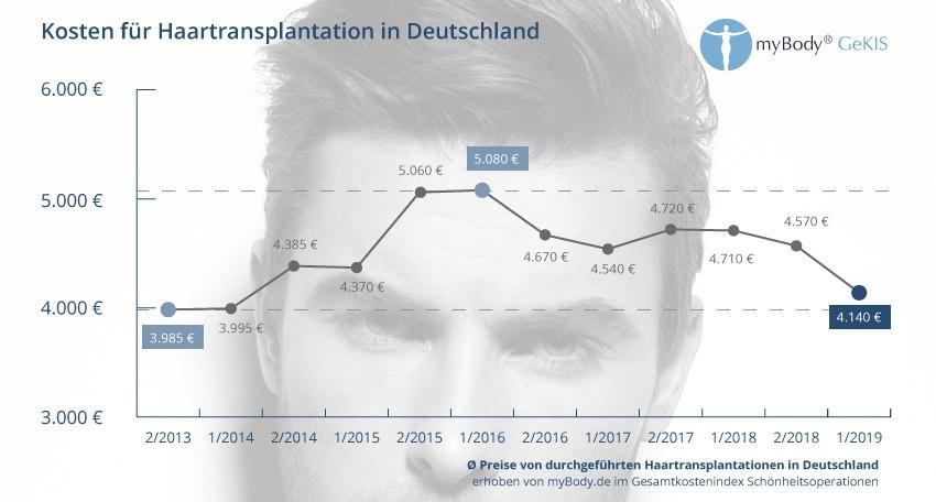 Statistik Haartransplantation