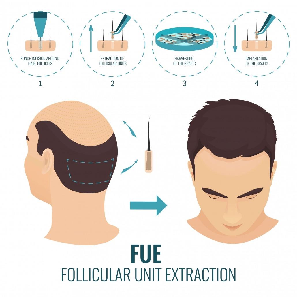 Haartransplantation FUE