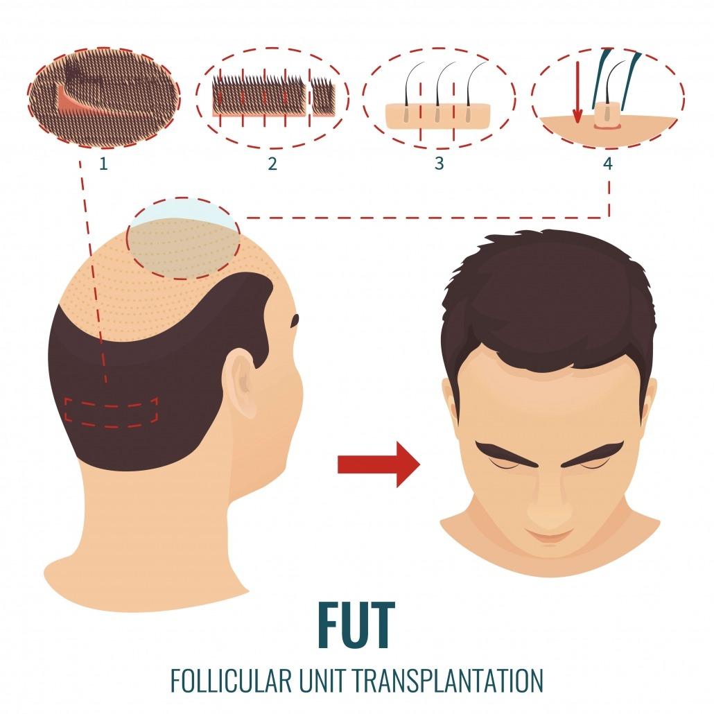 Haartransplantation FUT