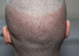 Entnahmestelle der Haarwurzeln